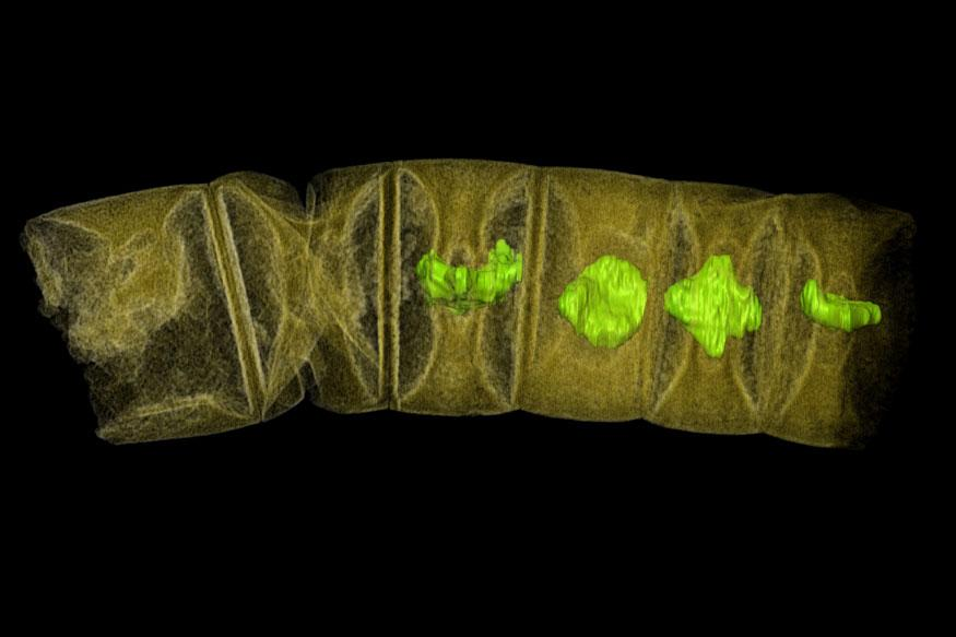 Fossil Site Shows Impact of Jurassic's Low Oxygen Oceans: Study