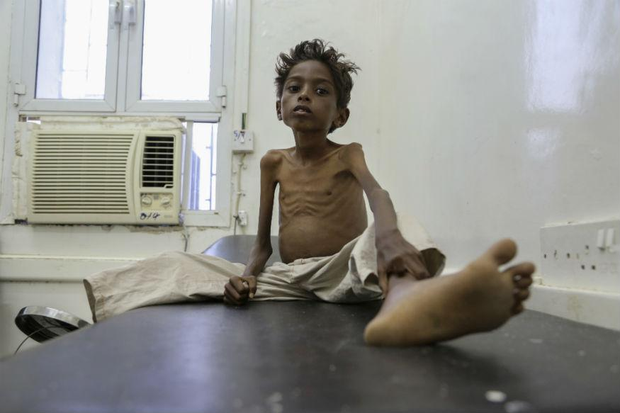 UN Warns Two-third Yemenis Facing Famine