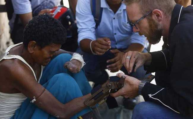 Cheap 3D Printed Prosthetics Could Be Game Changer For Nepal